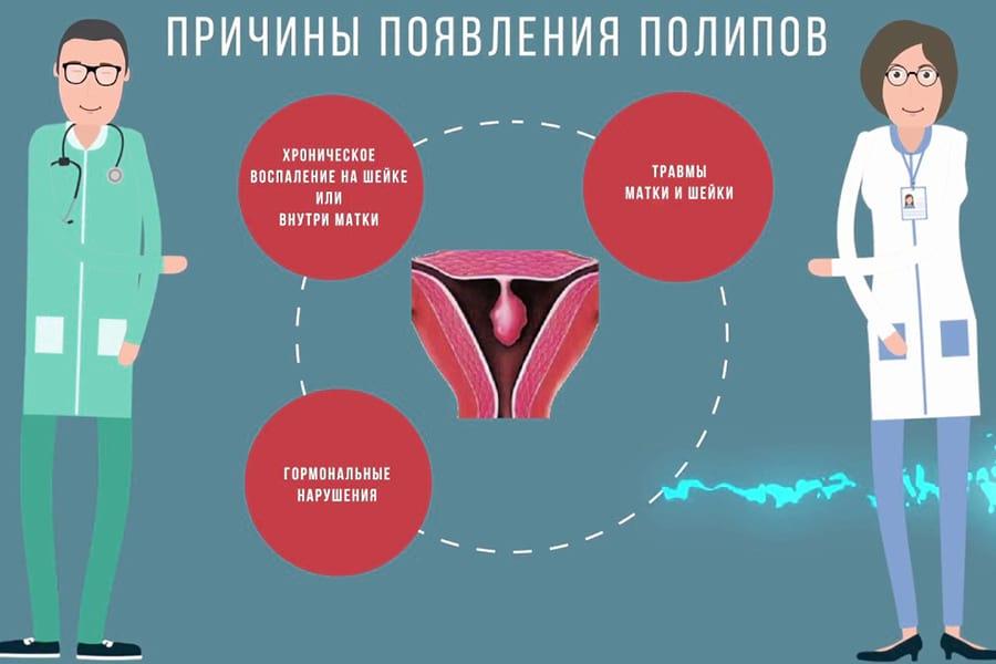 удаление полипа цервикального канала в Киеве