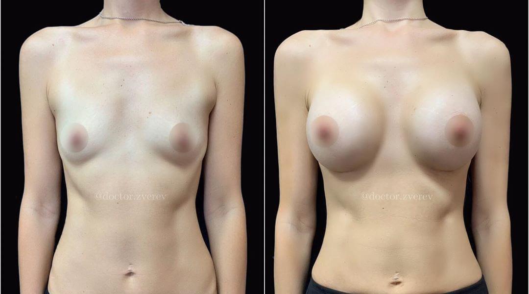 увеличение грудей фото до и после