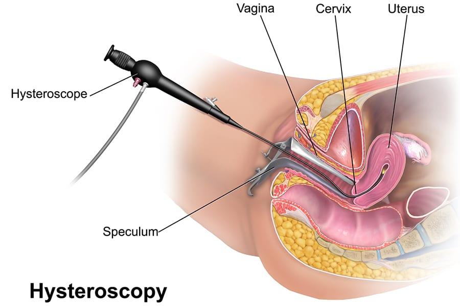 степени сложности гистерорезектоскопии, медицинский центр Киев