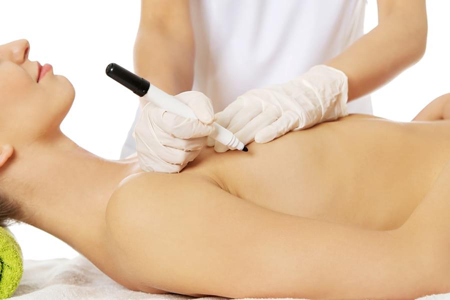 ход операции по увеличению грудей (маммопластика)
