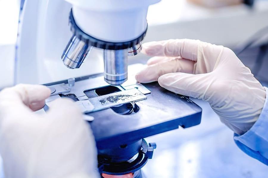 мазок на инфекции у мужчин и женщин