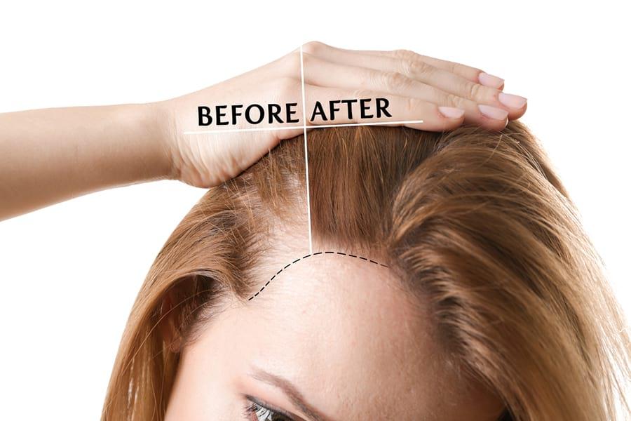 Пересадка волос. Цена в Киеве