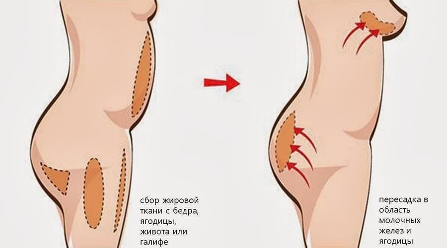 как делают липофилинг