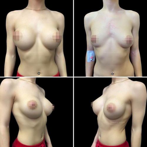 mammoplastika-foto-do-i-posle